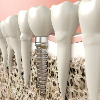 Implantate bei Zahnärztin Dr. Teutsch-Schlosser