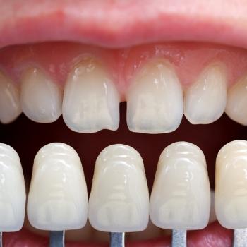 Veneers in der Zahnarztpraxis Dr. Teutsch-Schlosser