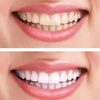 Bleaching beim Zahnarzt | Dr. Teutsch-Schlosser